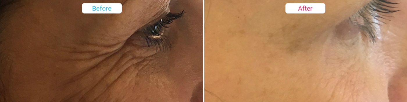 Facial Aesthetics before and after - Wrinkle Relaxing