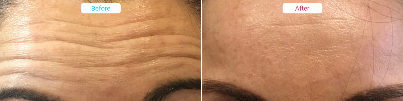 Facial Aesthetics before and after Wrinkle Relaxing