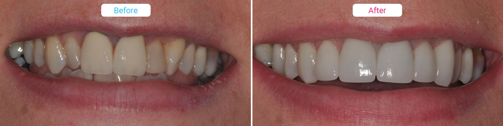Cosmetic Dentistry before and after photo