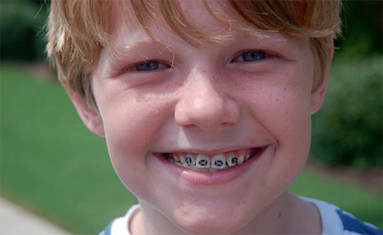 Childs Teeth