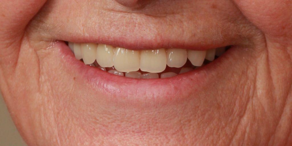 dentures-after