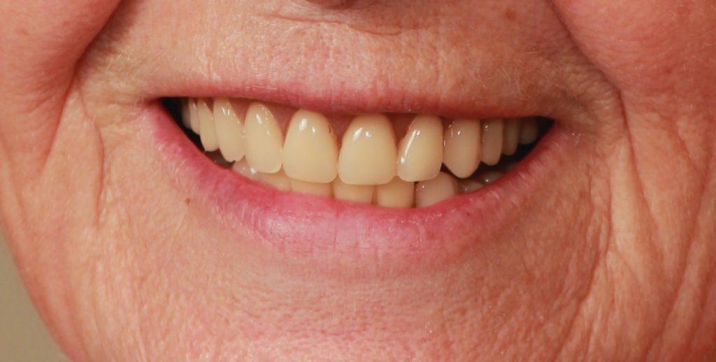 dentures -before