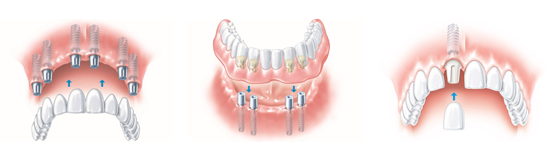 technical image representing tooth implants installation