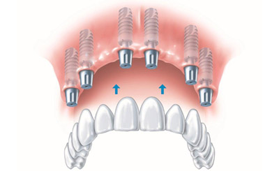 Full Arch Dental Implants when all Teeth are Missing